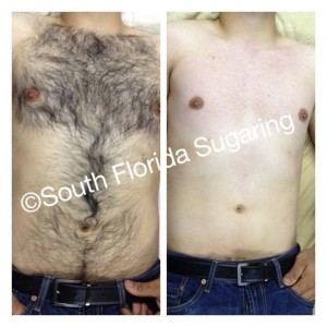 before and after chest