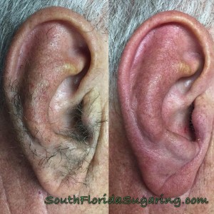 before and after ear sugaring